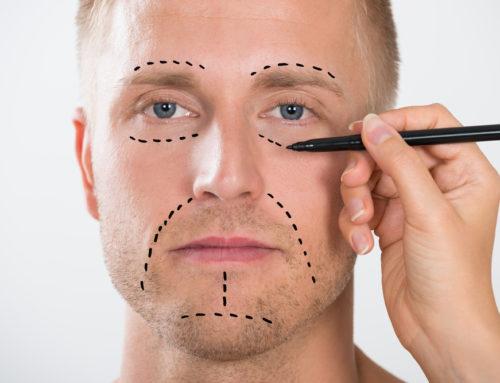 3 tratamientos de medicina estética para hombres