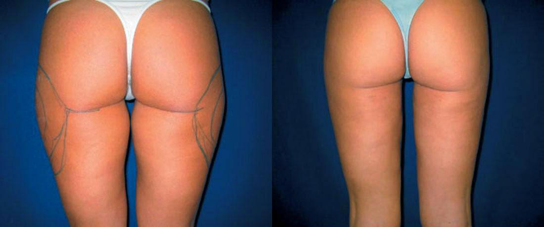 Imagenes liposucción antes y despues de una paciente de Barcelona