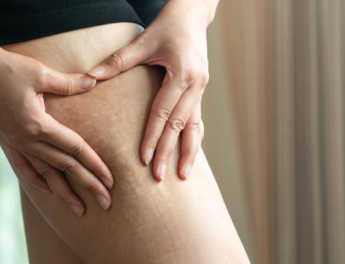 ¿Cómo usar la medicina estética para combatir las estrías?