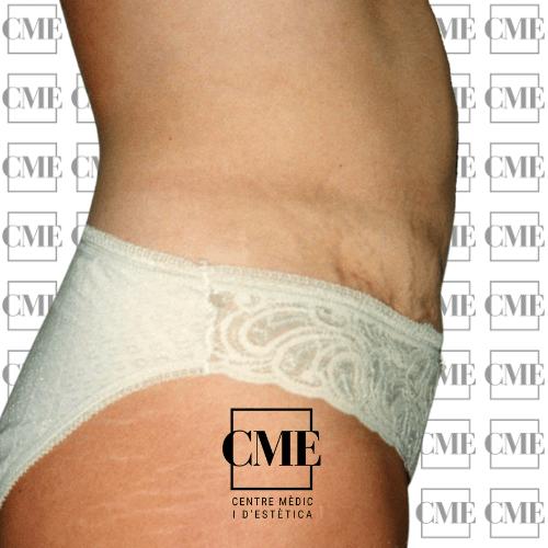 Lipolaser abdomen después del tratamiento