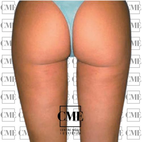 Liposuccion piernas después del tratamiento