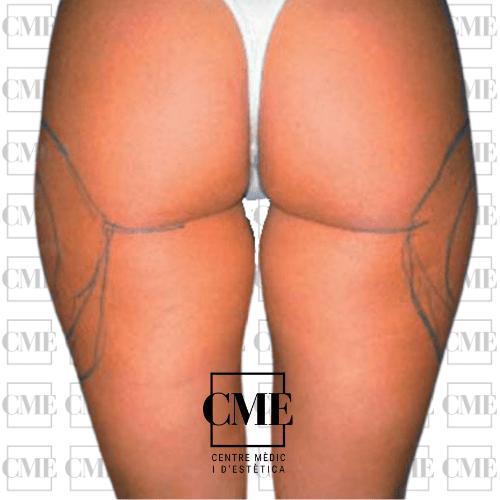 Liposuccion piernas antes del tratamiento