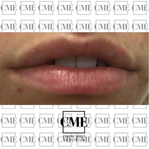 Relleno labios después del tratamiento