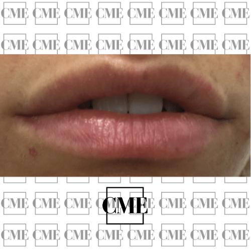 Ácido hialurónico labios después