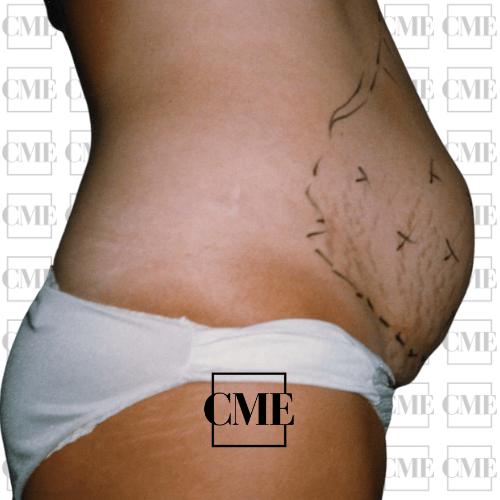 Liposucción abdomen antes