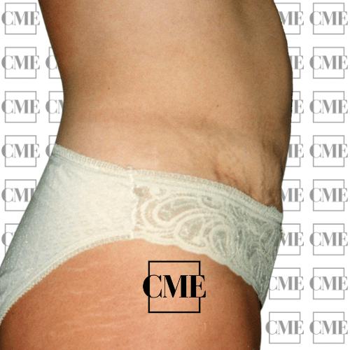 Liposucción abdomen después